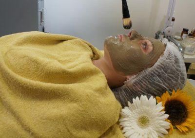 טיפול באקנה (12)