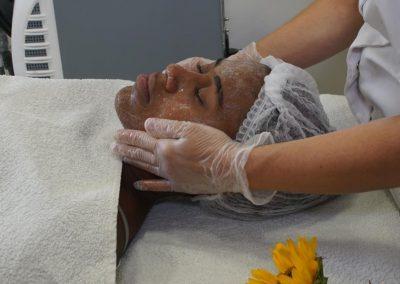 טיפול באקנה (4)
